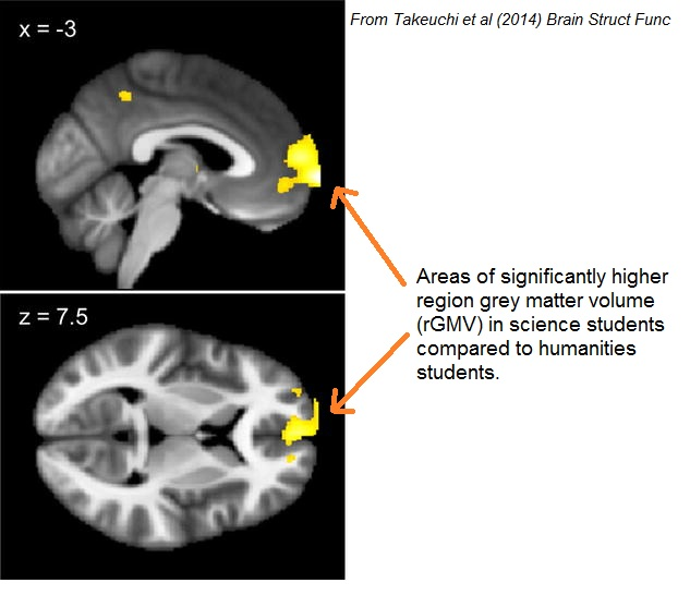 http://blogs.discovermagazine.com/neuroskeptic/2014/08/04/sciences-and-humanities-brains/#more-5341